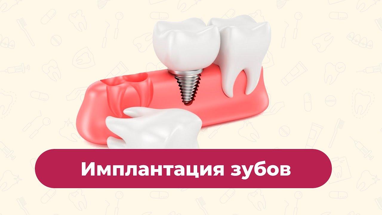 Имплантация зубов — 2