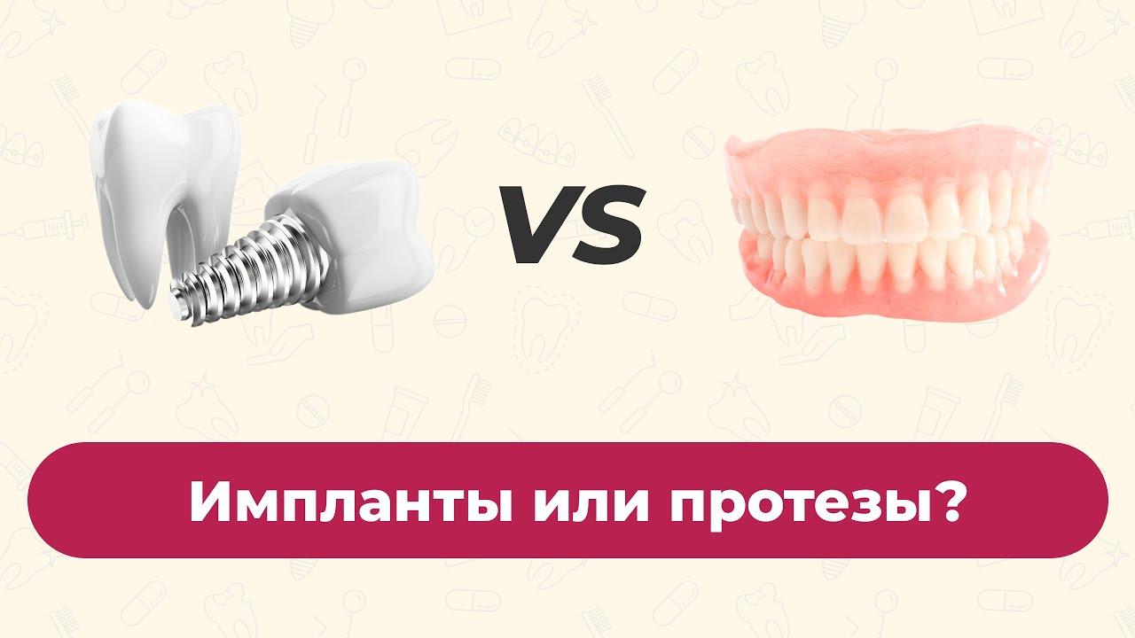 Импланты или протезы, что выбрать?