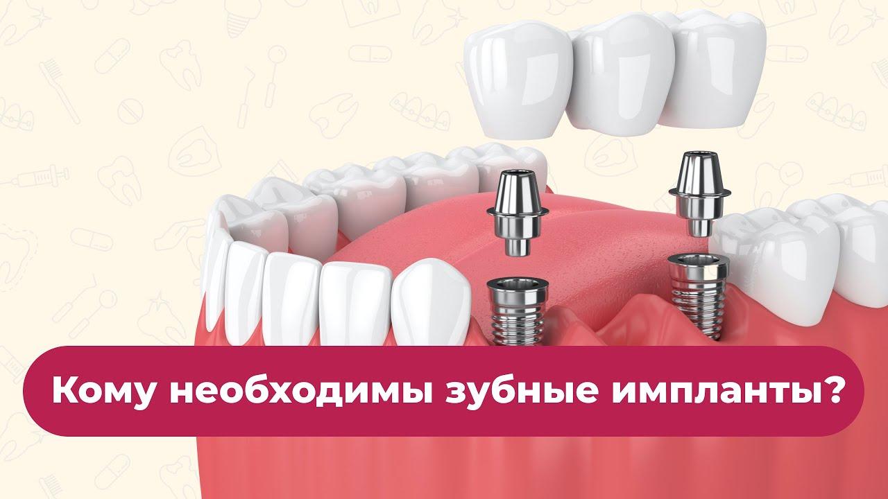 Кому необходимы зубные импланты?