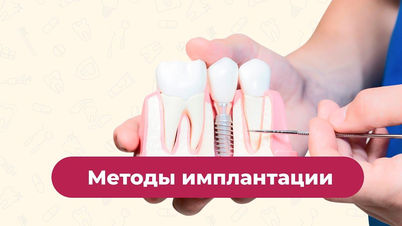 Методы имплантации зубов
