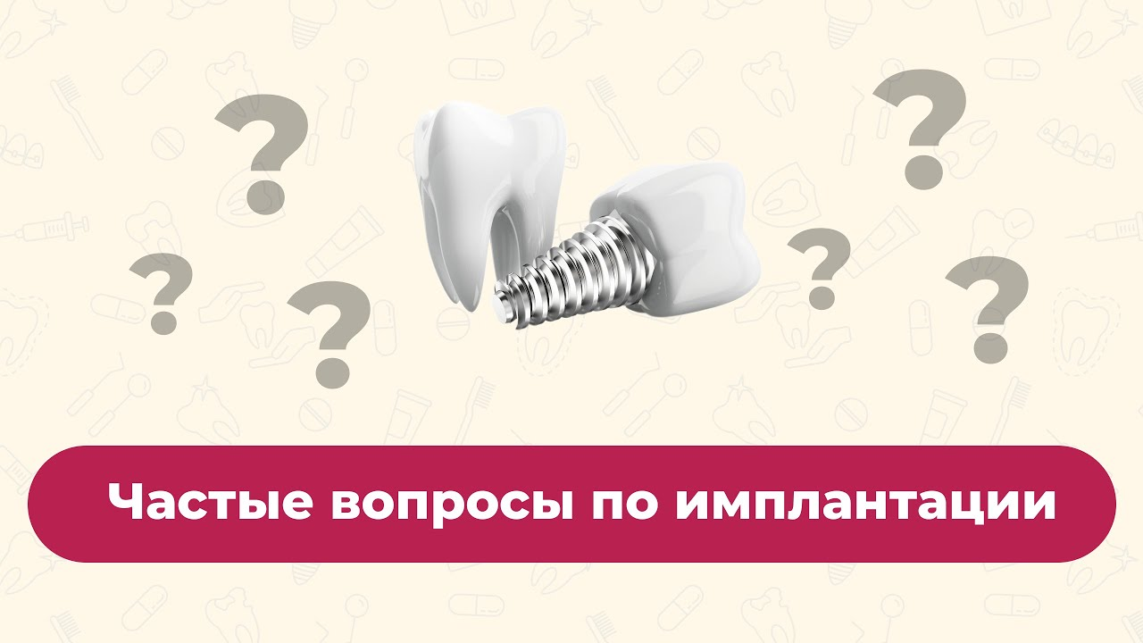 Частые вопросы по имплантации зубов