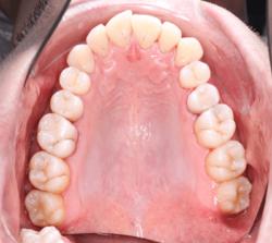 Профгигиена полости рта - после