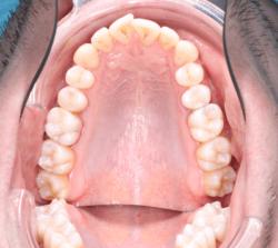 Профгигиена полости рта - до