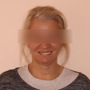 Восстановление челюсти — Базальный метод - до
