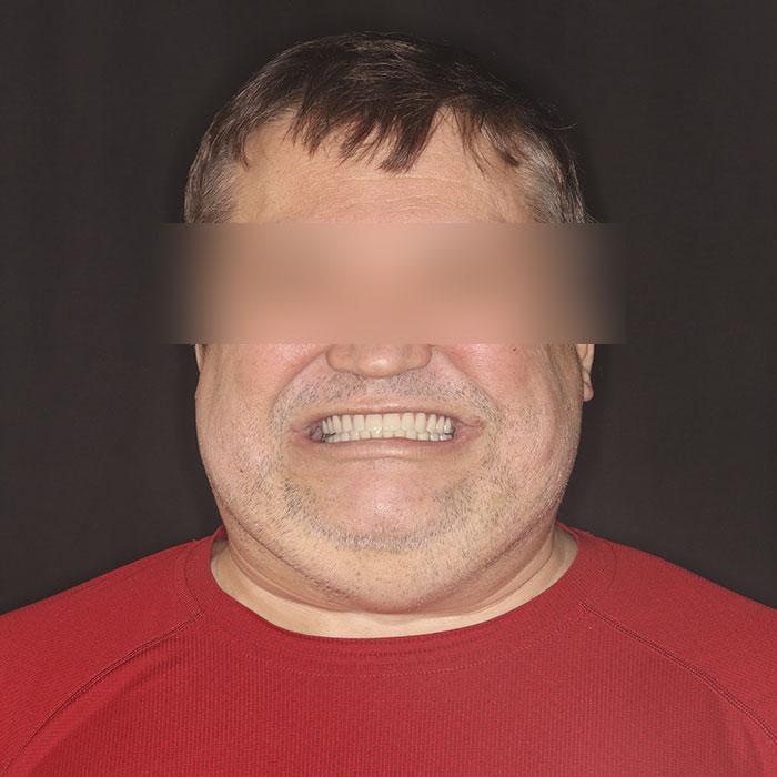 Восстановление челюсти — All on 4 - после
