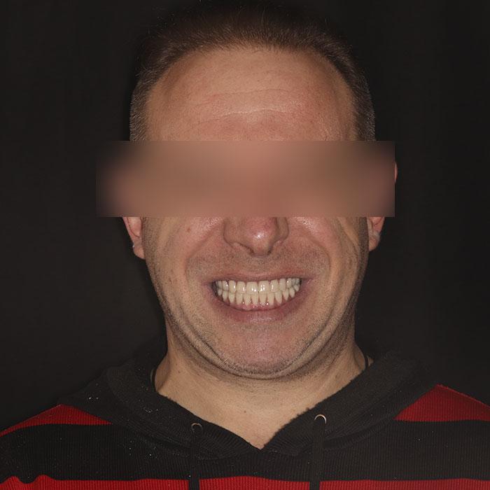 Восстановление челюсти — Базальный метод - после