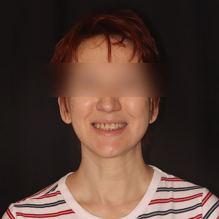 Восстановление челюсти — All on 4 - до