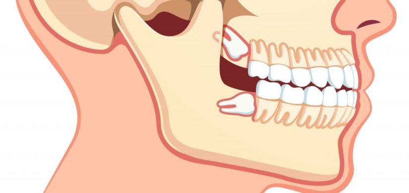 Неправильный рост зубов мудрости на верхней и нижней челюсти